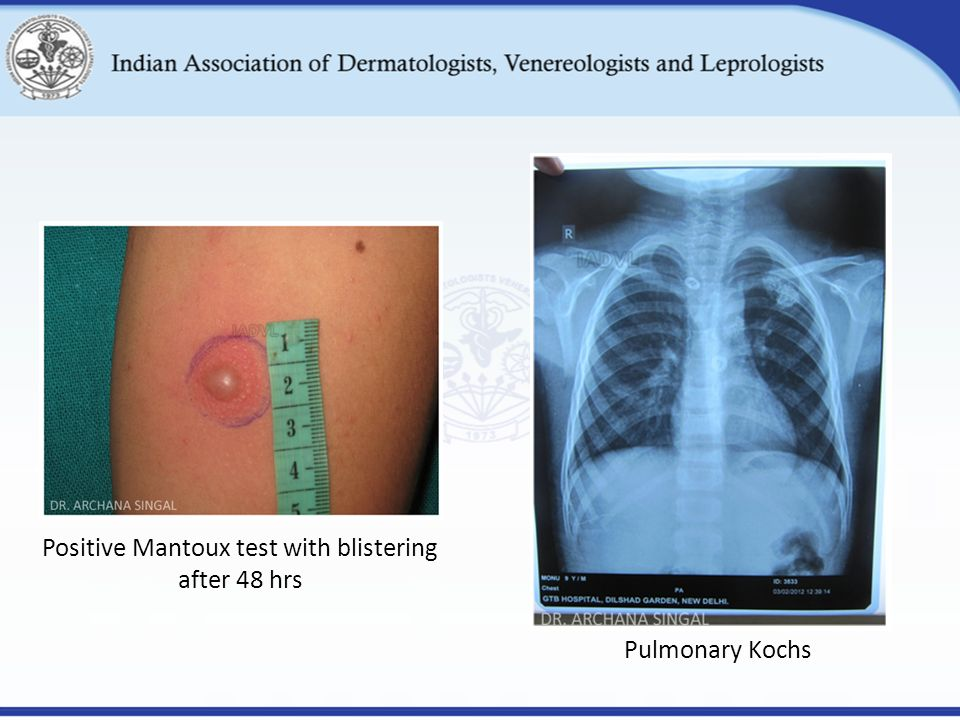 Positive Mantoux test with blistering after 48 hrs Pulmonary Kochs