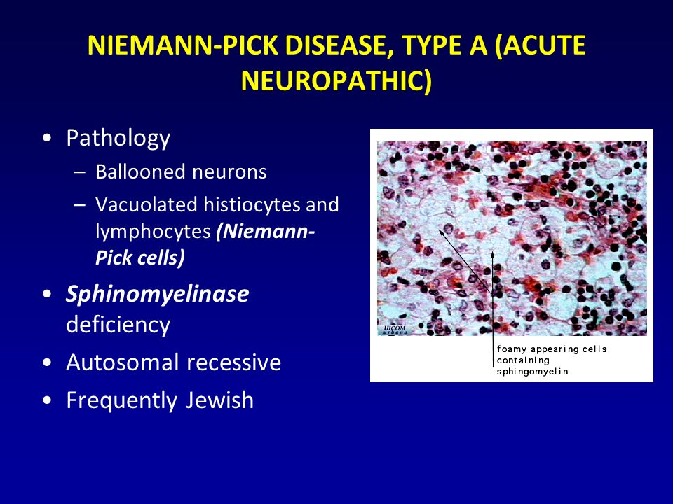 NIEMANN-PICK DISEASE, TYPE A (ACUTE NEUROPATHIC) Pathology –Ballooned neurons –Vacuolated histiocytes and lymphocytes (Niemann- Pick cells) Sphinomyelinase deficiency Autosomal recessive Frequently Jewish