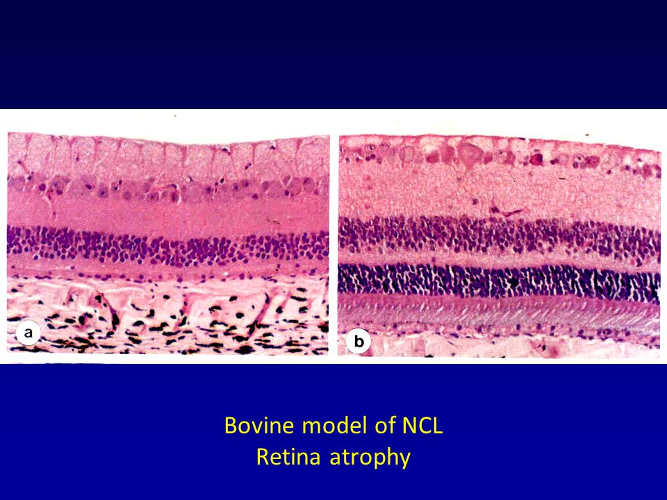 Bovine model of NCL Retina atrophy