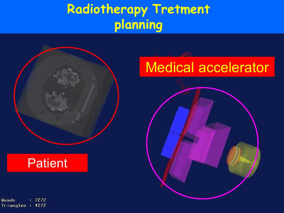 Radiotherapy Tretment planning Patient Medical accelerator