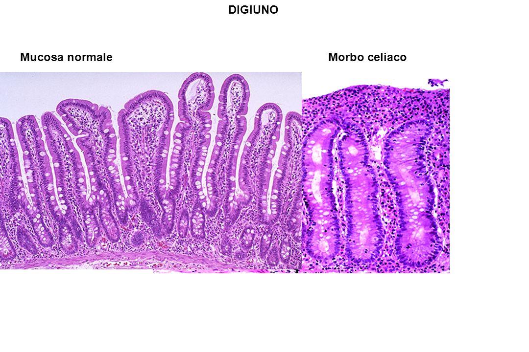 DIGIUNO Mucosa normale Morbo celiaco
