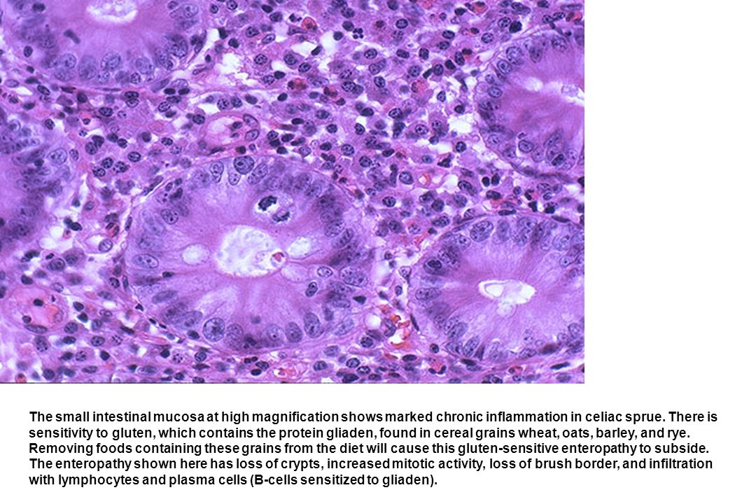 The small intestinal mucosa at high magnification shows marked chronic inflammation in celiac sprue. There is sensitivity to gluten, which contains th