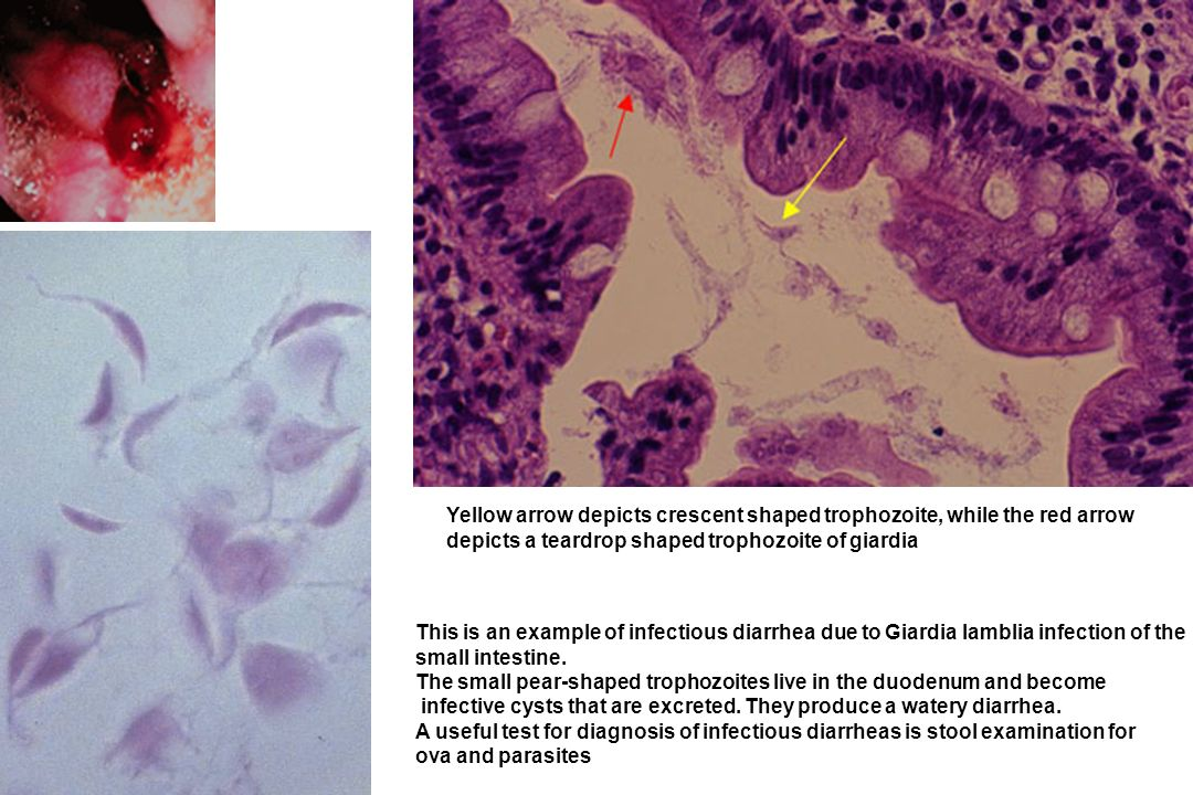 This is an example of infectious diarrhea due to Giardia lamblia infection of the small intestine. The small pear-shaped trophozoites live in the duod
