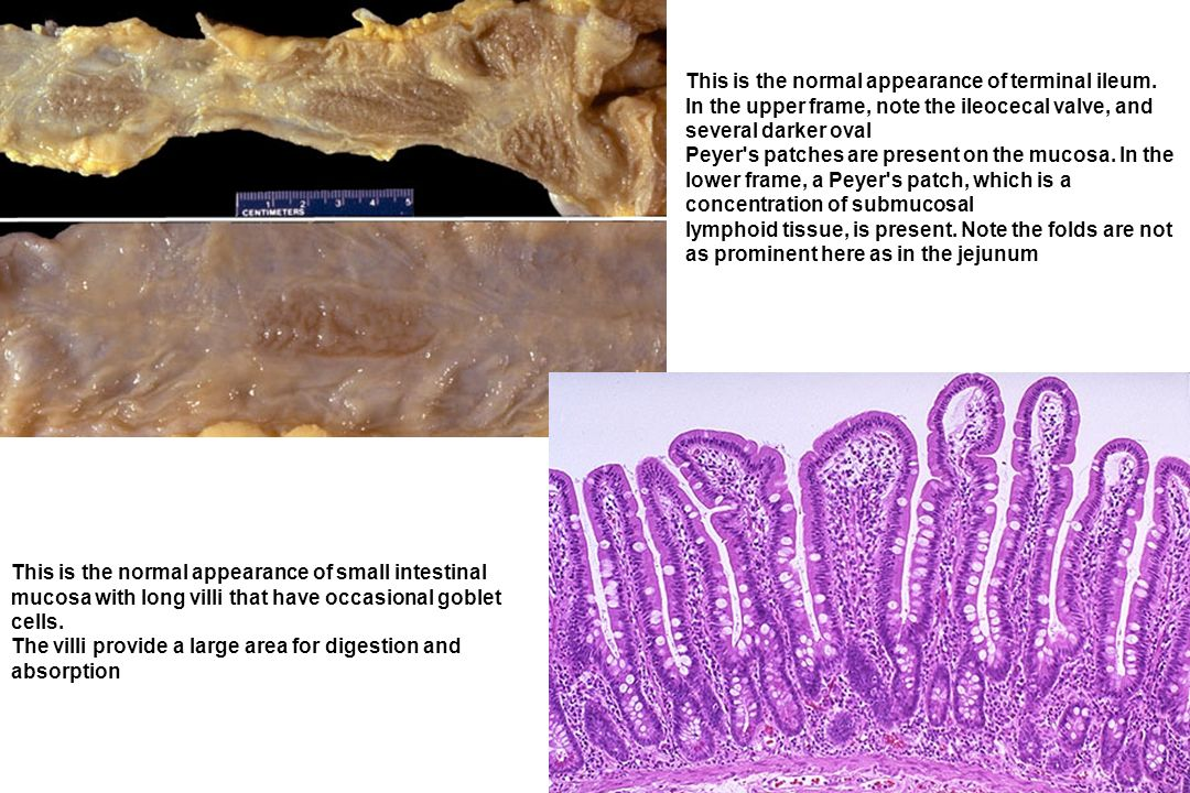 The mucosal surface of the bowel seen here shows early necrosis with hyperemia extending all the way from mucosa to submucosal and muscular wall vessels.