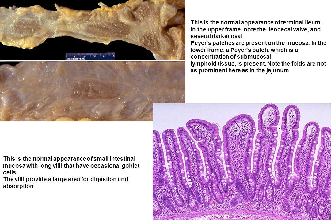 BASI FISIOPATOLOGICHE Lintestino presenta unenorme area superficiale, incrementata, a livello del tenue, dalla presenza dei microvilli (2 x 108/cm2).