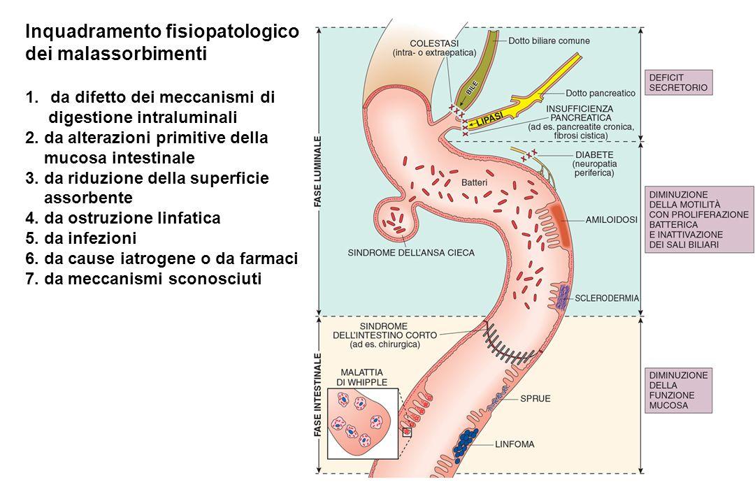 Inquadramento fisiopatologico dei malassorbimenti 1.da difetto dei meccanismi di digestione intraluminali 2. da alterazioni primitive della mucosa int