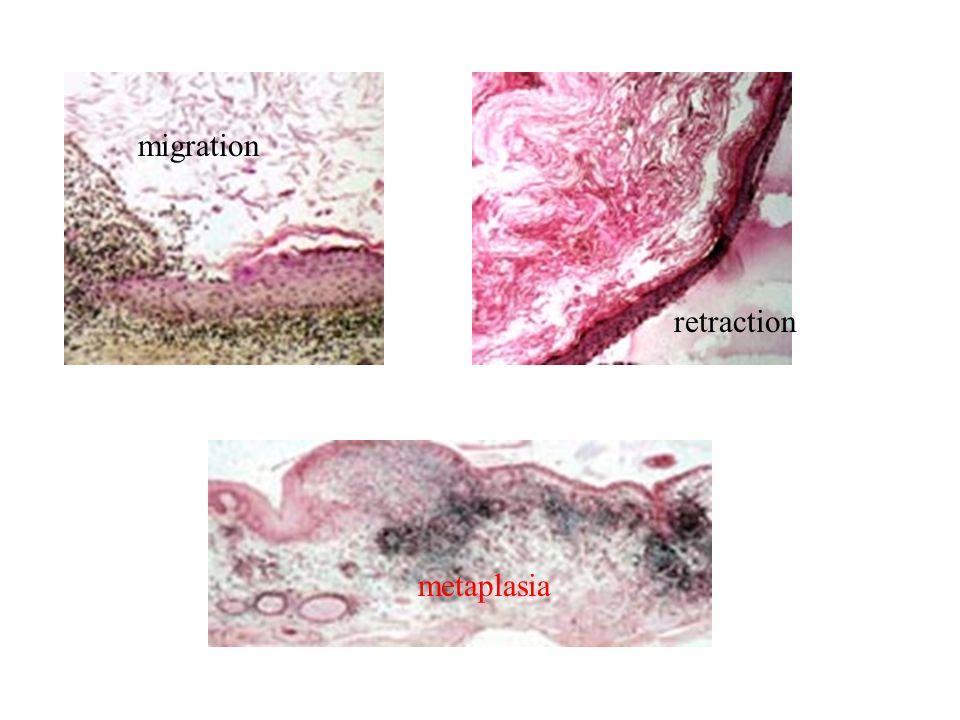 metaplasia migration retraction