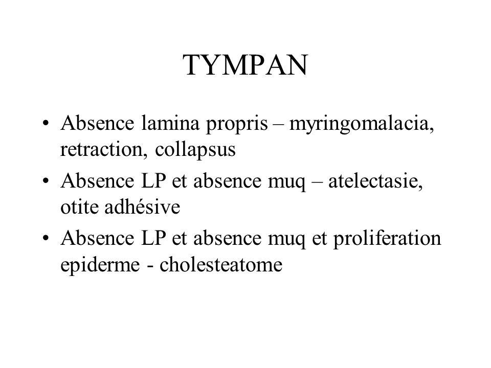 TYMPAN Absence lamina propris – myringomalacia, retraction, collapsus Absence LP et absence muq – atelectasie, otite adhésive Absence LP et absence muq et proliferation epiderme - cholesteatome