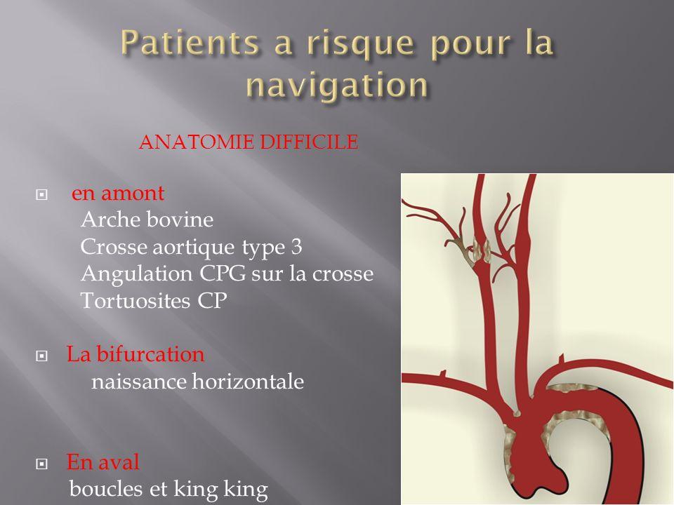 ANATOMIE DIFFICILE en amont Arche bovine Crosse aortique type 3 Angulation CPG sur la crosse Tortuosites CP La bifurcation naissance horizontale En av