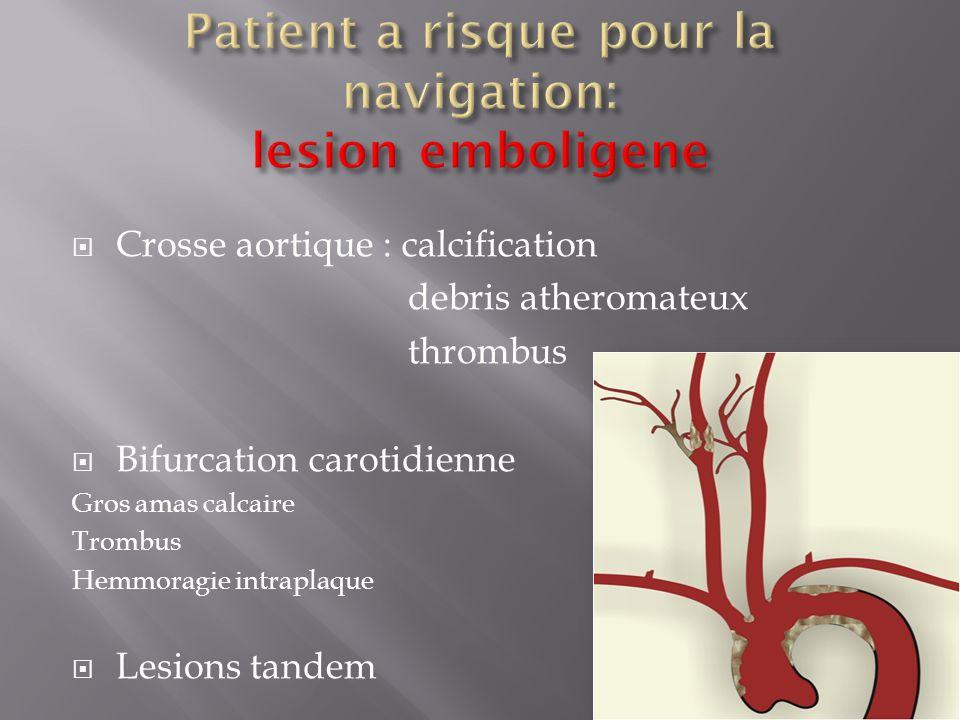 Crosse aortique : calcification debris atheromateux thrombus Bifurcation carotidienne Gros amas calcaire Trombus Hemmoragie intraplaque Lesions tandem