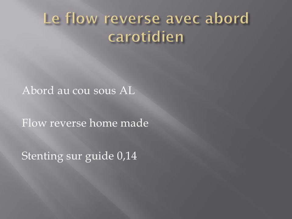 Abord au cou sous AL Flow reverse home made Stenting sur guide 0,14