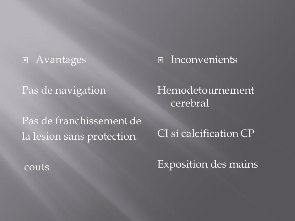 Avantages Pas de navigation Pas de franchissement de la lesion sans protection couts Inconvenients Hemodetournement cerebral CI si calcification CP Ex