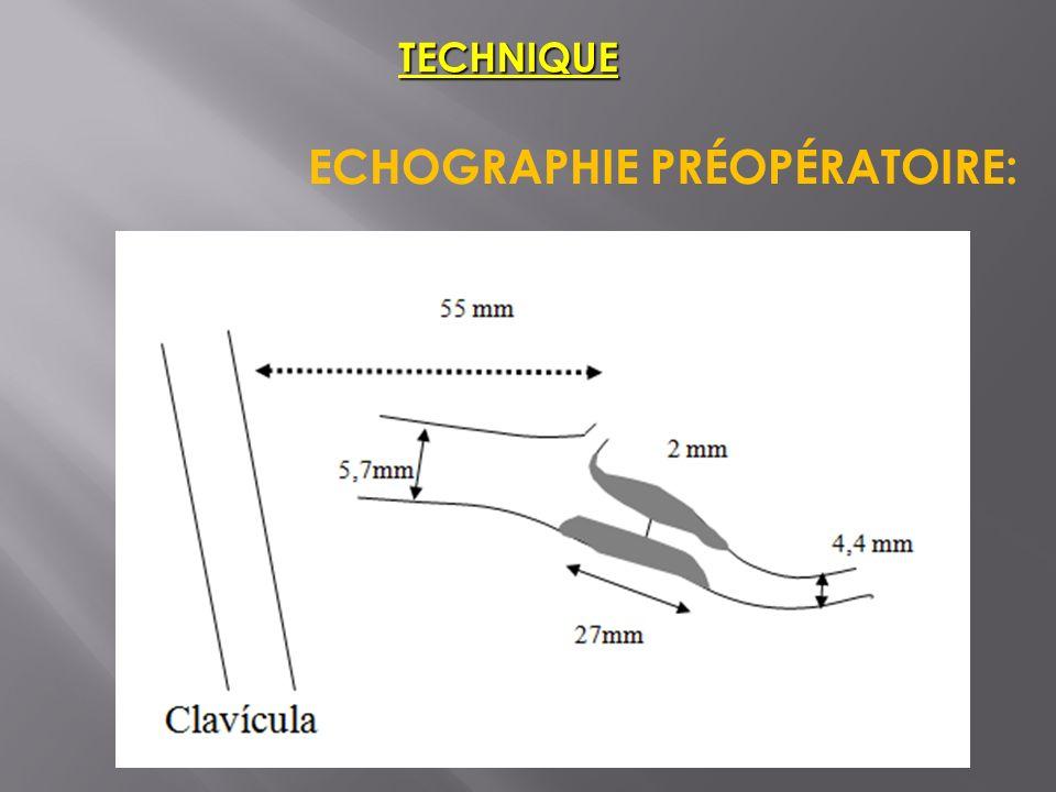 TECHNIQUE ECHOGRAPHIE PRÉOPÉRATOIRE: