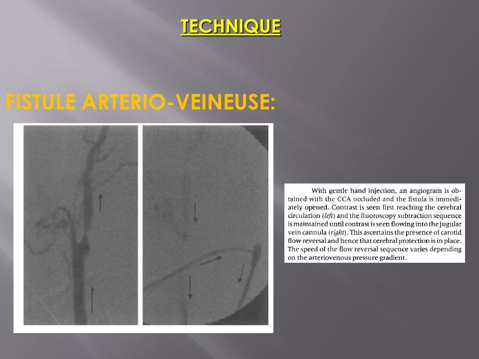 TECHNIQUE FISTULE ARTERIO-VEINEUSE: