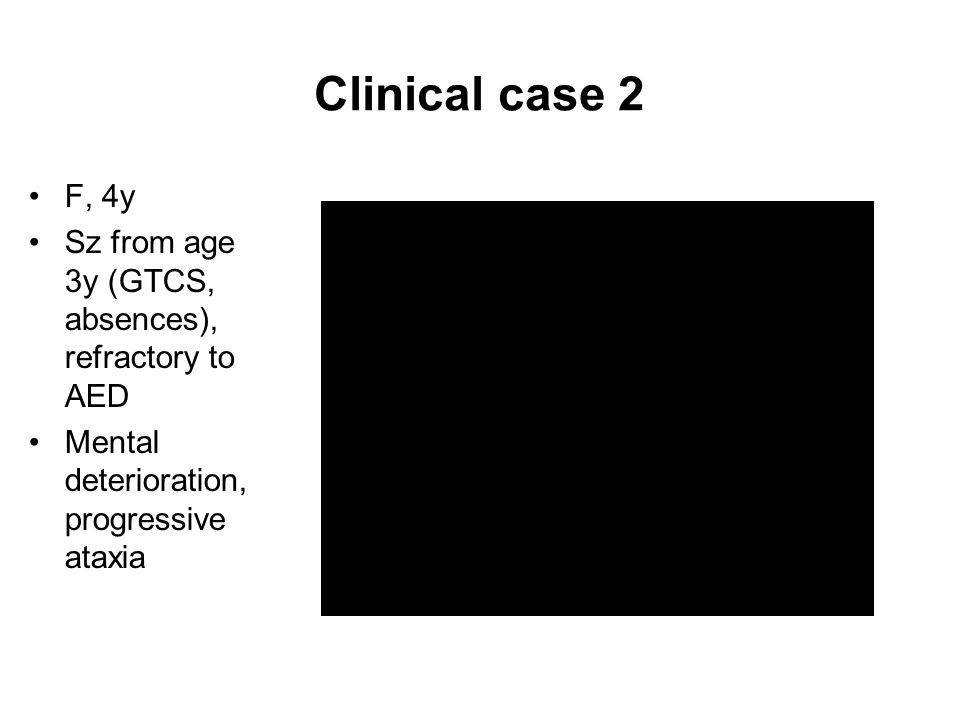 Clinical case 2 F, 4y Sz from age 3y (GTCS, absences), refractory to AED Mental deterioration, progressive ataxia