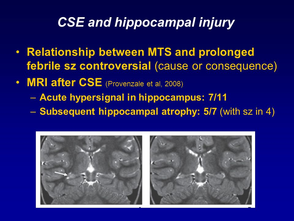 CSE and hippocampal injury Relationship between MTS and prolonged febrile sz controversial (cause or consequence) MRI after CSE (Provenzale et al, 200