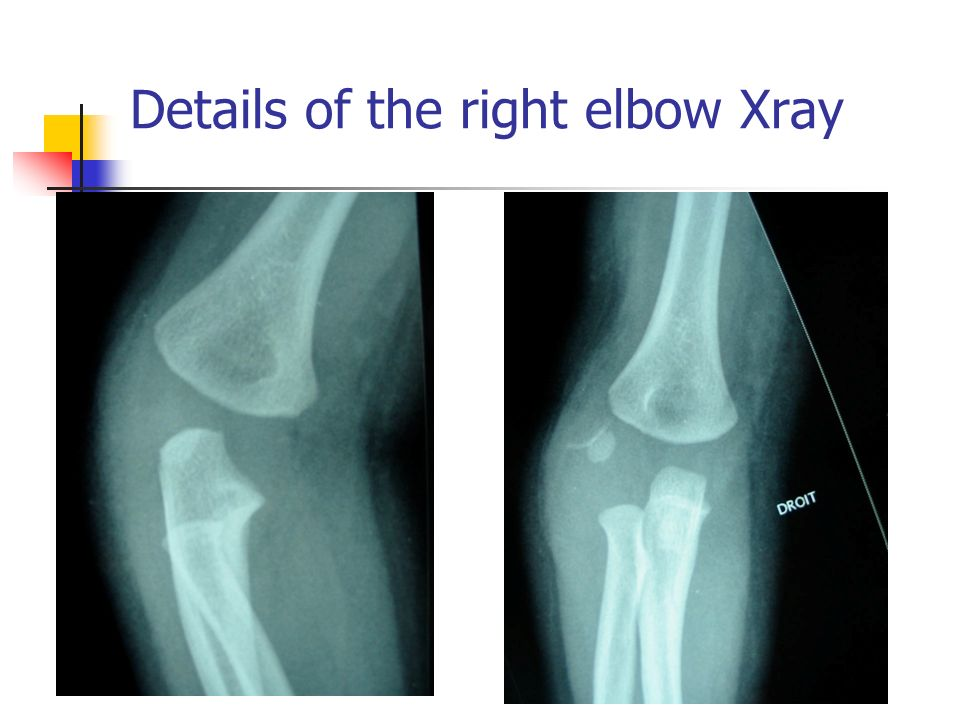 Xray of the right elbow