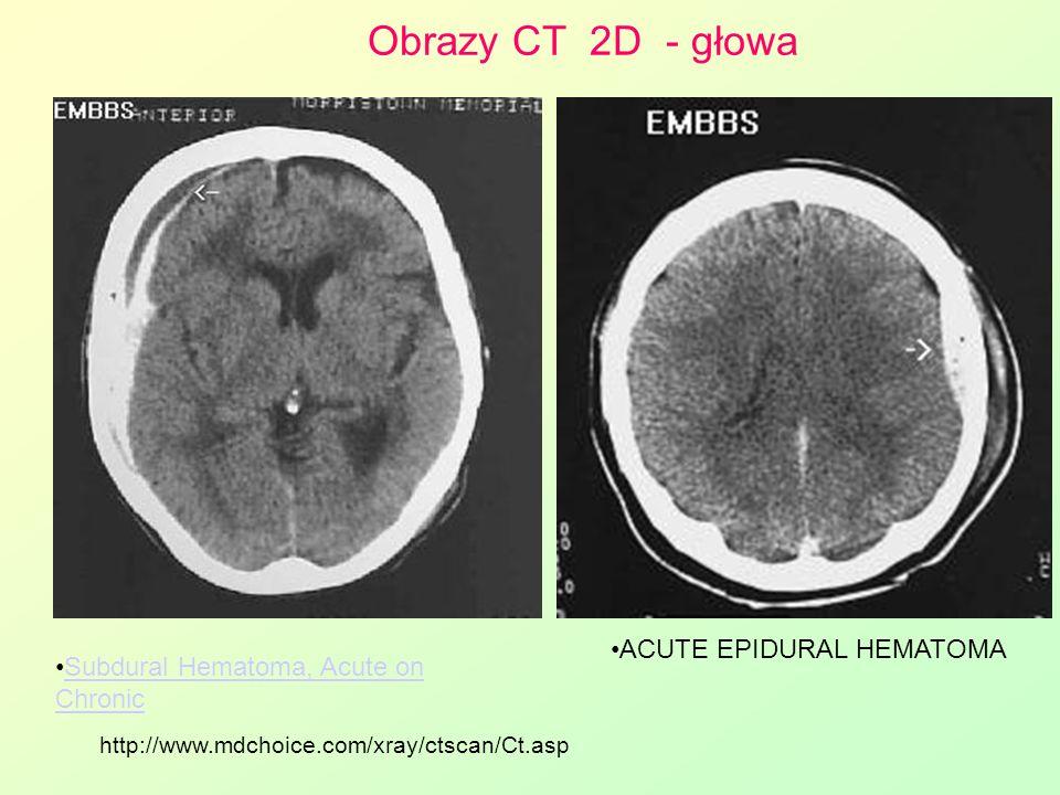 Obrazy CT 2D - głowa ACUTE EPIDURAL HEMATOMA Subdural Hematoma, Acute on ChronicSubdural Hematoma, Acute on Chronic http://www.mdchoice.com/xray/ctsca