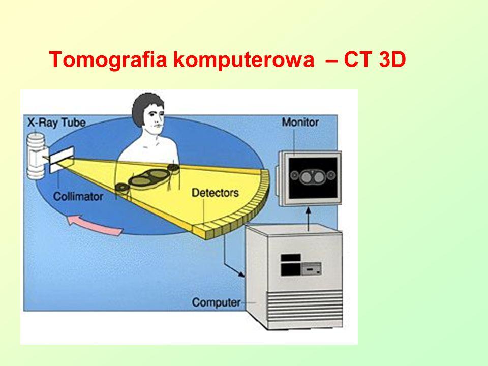 Tomografia komputerowa – CT 3D