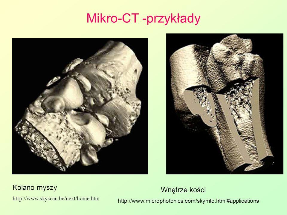 Mikro-CT -przykłady Kolano myszy http://www.skyscan.be/next/home.htm Wnętrze kości http://www.microphotonics.com/skymto.html#applications