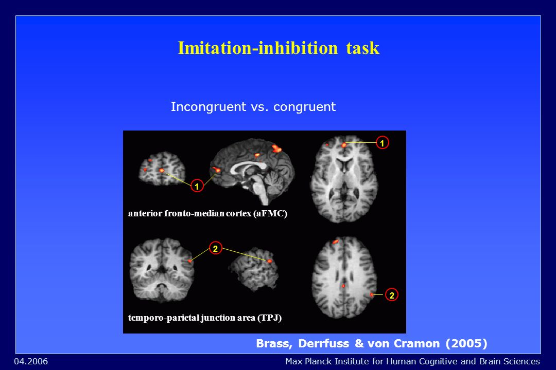 Max Planck Institute for Human Cognitive and Brain Sciences04.2006 Imitation-inhibition task Incongruent vs.