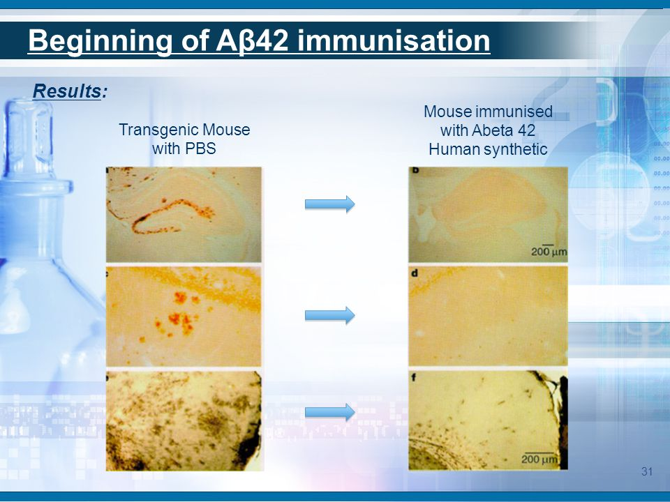 Transgenic Mouse with PBS Mouse immunised with Abeta 42 Human synthetic Results: Beginning of Aβ42 immunisation 31