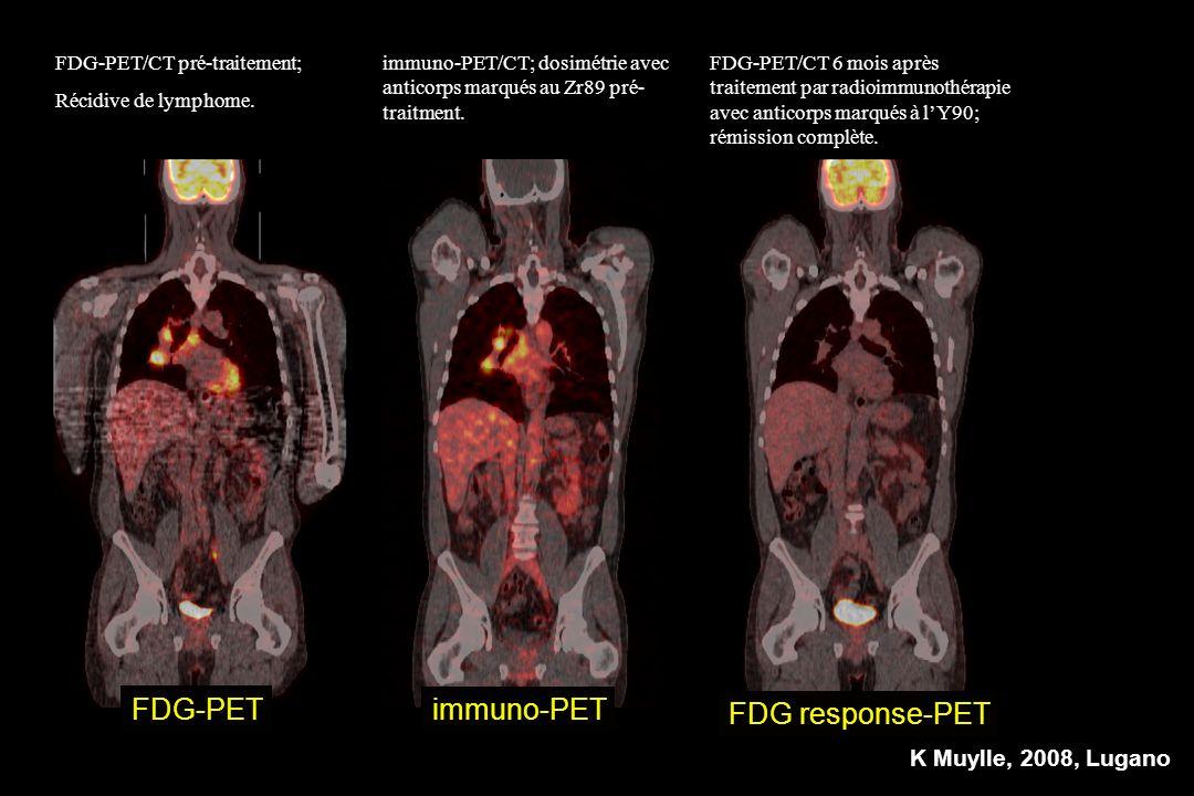 FDG-PET/CT pré-traitement; Récidive de lymphome. FDG-PET/CT 6 mois après traitement par radioimmunothérapie avec anticorps marqués à lY90; rémission c