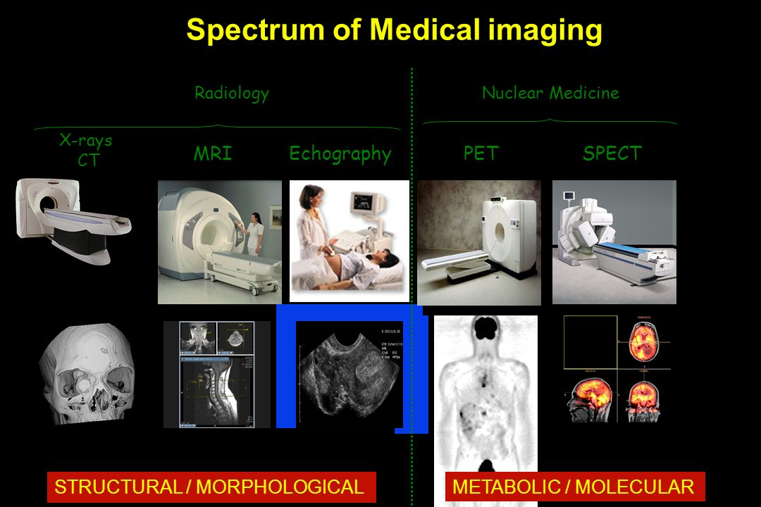 X-rays CT MRI PETSPECT Nuclear Medicine Echography Radiology Spectrum of Medical imaging STRUCTURAL / MORPHOLOGICAL METABOLIC / MOLECULAR