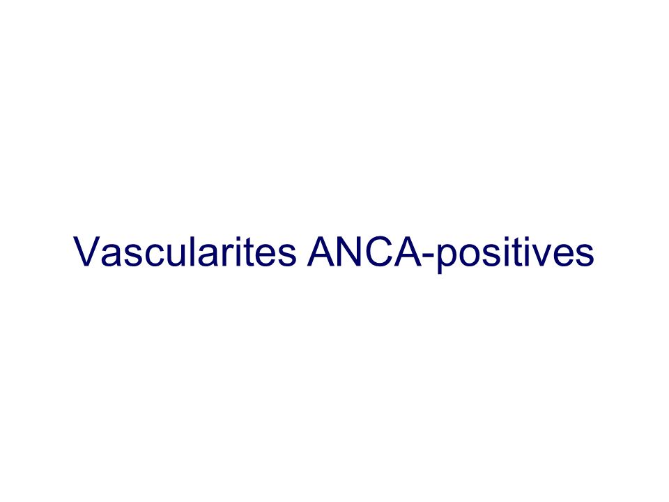 Vascularites ANCA-positives