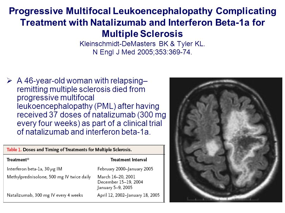 Progressive Multifocal Leukoencephalopathy Complicating Treatment with Natalizumab and Interferon Beta-1a for Multiple Sclerosis Kleinschmidt-DeMaster