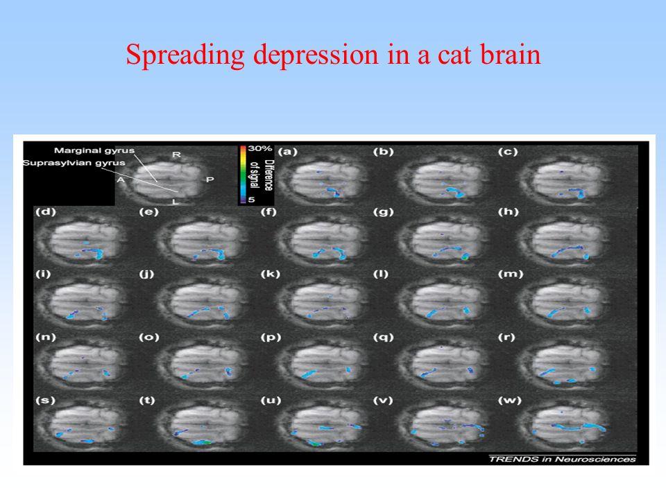 Spreading depression in a cat brain
