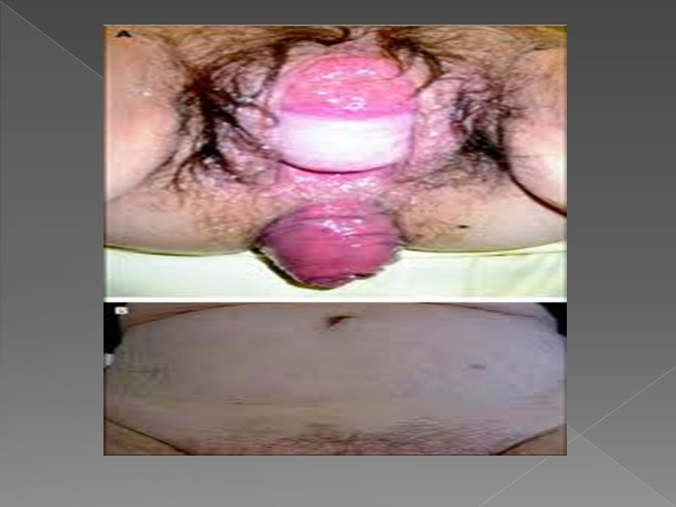 A 59 years old women, was referred to the Urology Service with cystocele and ultrasonography of urinary tract evidencing bilateral hydronephrosis As for her antecedents, she reported having 8 pregnancies in the past, with 6 normal deliveries, 1 cesarean and 1 miscarriage.