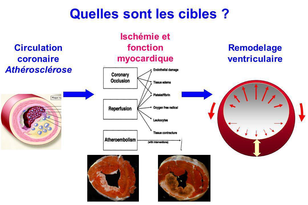 Circulation coronaire Athérosclérose Remodelage ventriculaire Quelles sont les cibles ? Ischémie et fonction myocardique