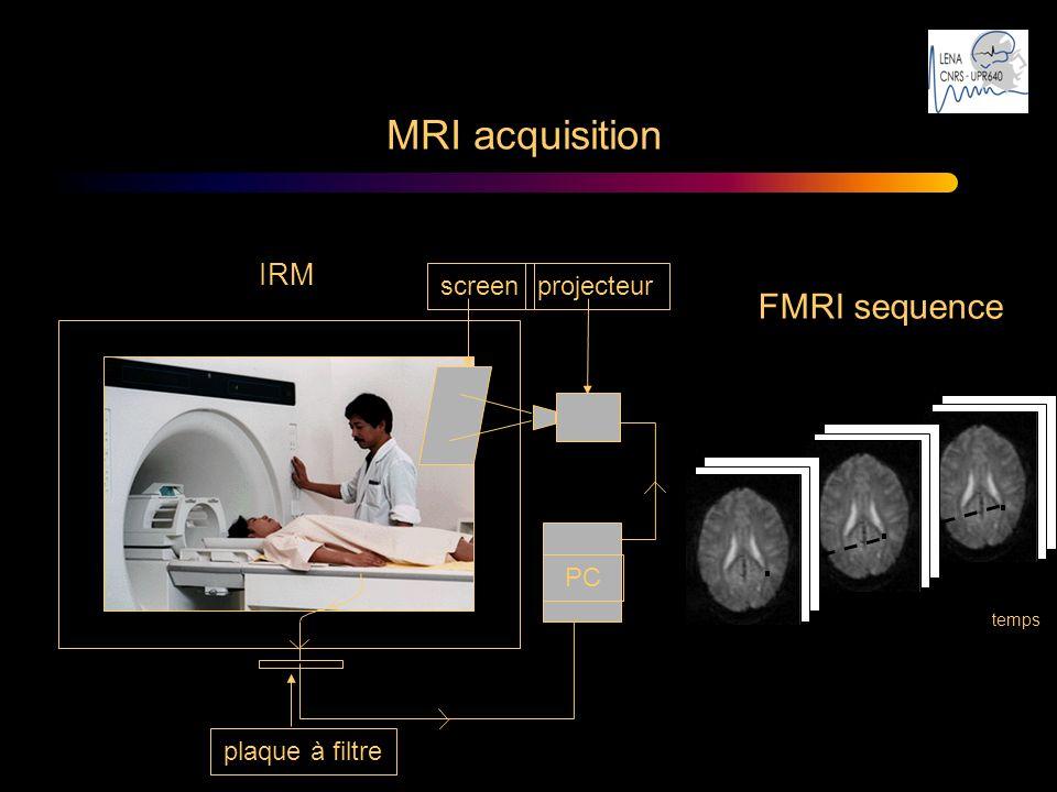 IRM screenprojecteur PC plaque à filtre MRI acquisition temps FMRI sequence