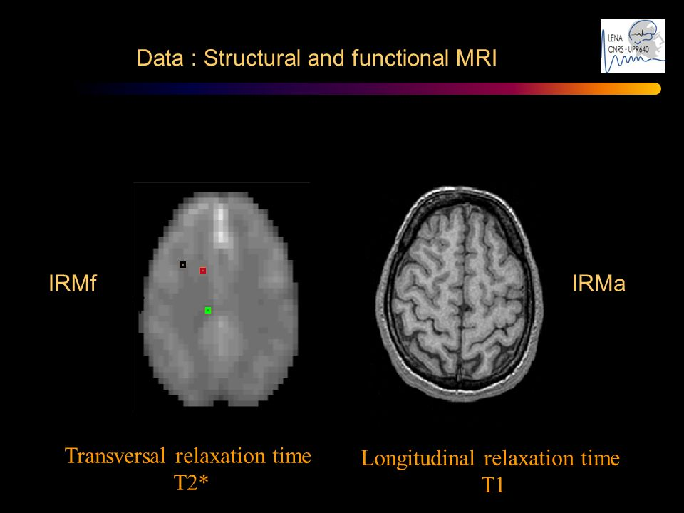 Data : Structural and functional MRI IRMf signal IRMf IRMa Transversal relaxation time T2* Longitudinal relaxation time T1