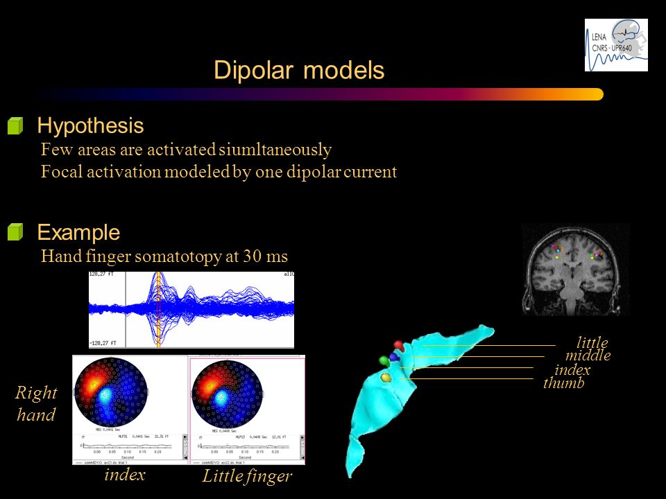 Dipolar models Hypothesis Few areas are activated siumltaneously Focal activation modeled by one dipolar current thumb index middle little Example Han