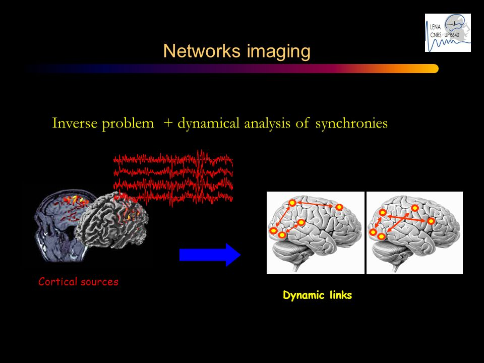 Networks imaging – Inverse problem + dynamical analysis of synchronies Cortical sources Dynamic links