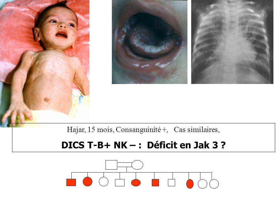 Hajar, 15 mois, Consanguinité +, Cas similaires, DICS T-B+ NK – : Déficit en Jak 3