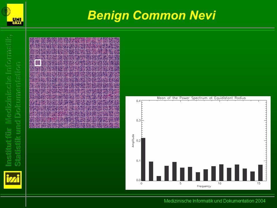 Medizinische Informatik und Dokumentation 2004 Benign Common Nevi