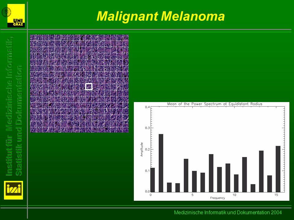 Medizinische Informatik und Dokumentation 2004 Malignant Melanoma