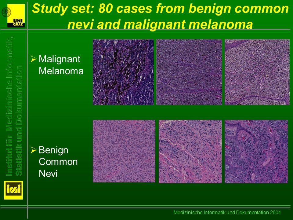 Medizinische Informatik und Dokumentation 2004 Erroneous Classification Results for Benign Common Nevi