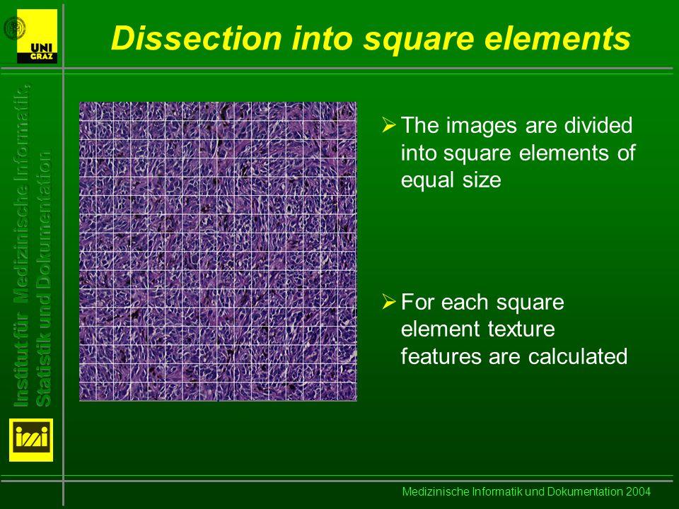 Medizinische Informatik und Dokumentation 2004 Fourier Transform Decomposition into frequency components: Power spectrum: