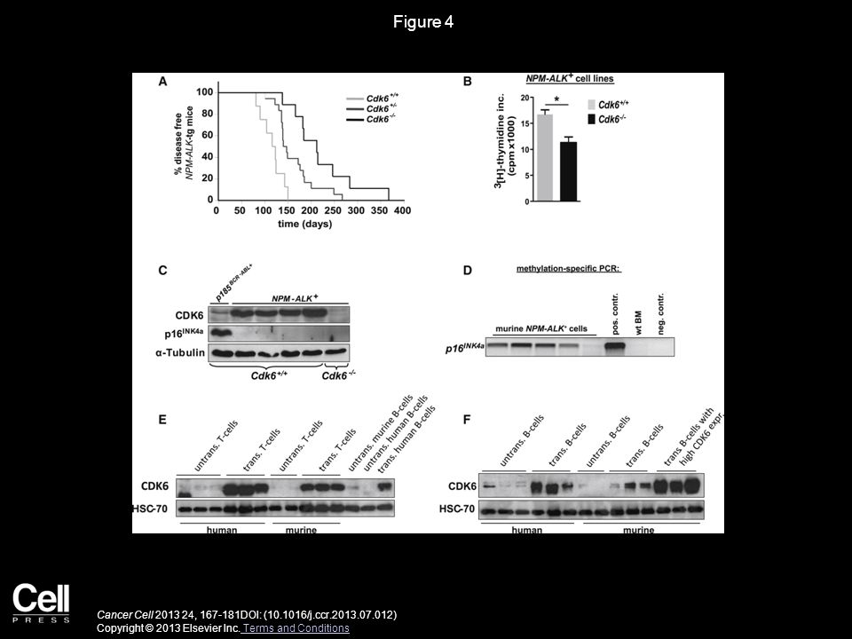 Figure 4 Cancer Cell 2013 24, 167-181DOI: (10.1016/j.ccr.2013.07.012) Copyright © 2013 Elsevier Inc. Terms and Conditions Terms and Conditions
