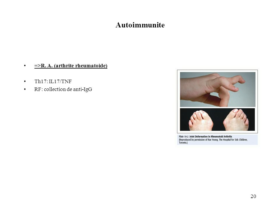 20 Autoimmunite =>R. A. (arthrite rheumatoide) Th17: IL17/TNF RF: collection de anti-IgG