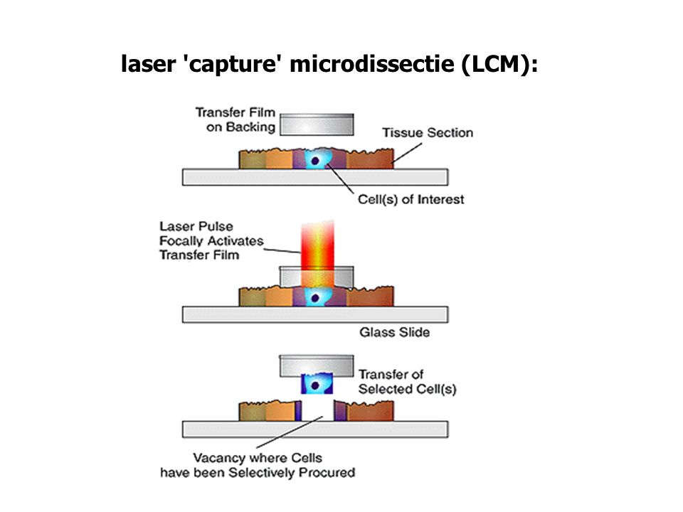 laser 'capture' microdissectie (LCM):
