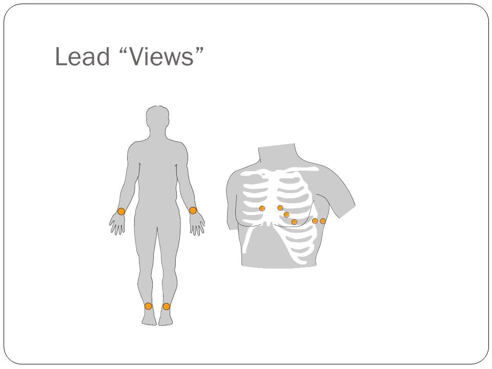 Lead Views