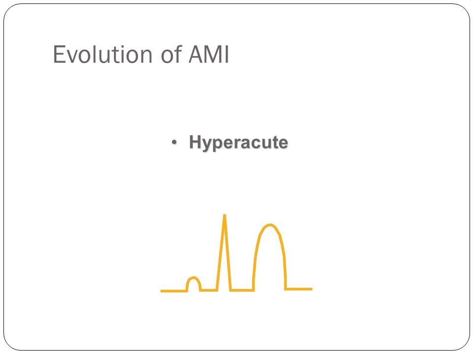 Evolution of AMI HyperacuteHyperacute