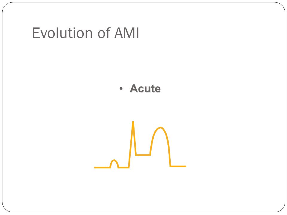 Evolution of AMI AcuteAcute