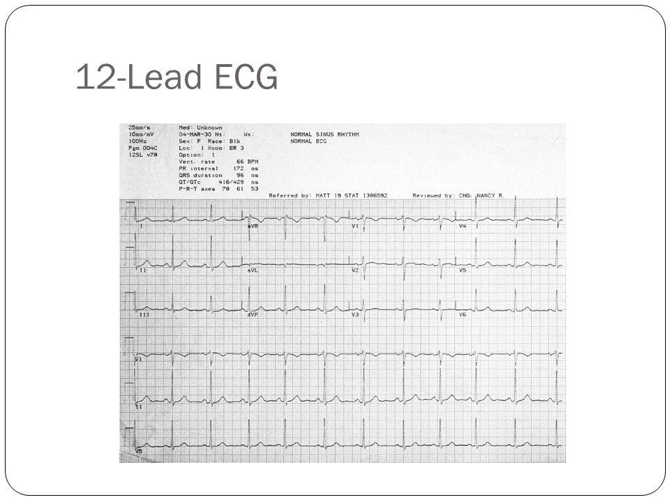 QRS Q waves Physiologic Q waves <.04 sec (40ms) Pathologic Q >.04 sec (40 ms)