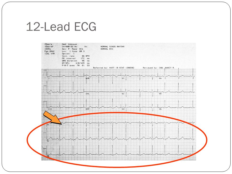 ST Segment Elevation Presumptive evidence of AMI Indication for acute reperfusion therapy